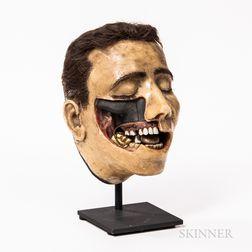 Early Wax Dental Model