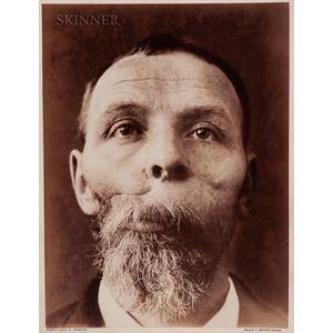 Félix Méheux (French, 1838-1908)      Portrait of a Surgical Patient, Hôpital St. Louis